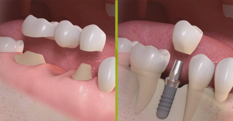 Approfondimento sull'implantologia dentale
