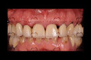 impianti dentali studio burdick ragucci