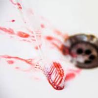 parodontite sangue denti